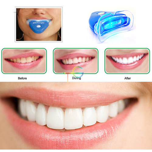 details about 3d white teeth tooth whitener kit whitening blue light. Black Bedroom Furniture Sets. Home Design Ideas