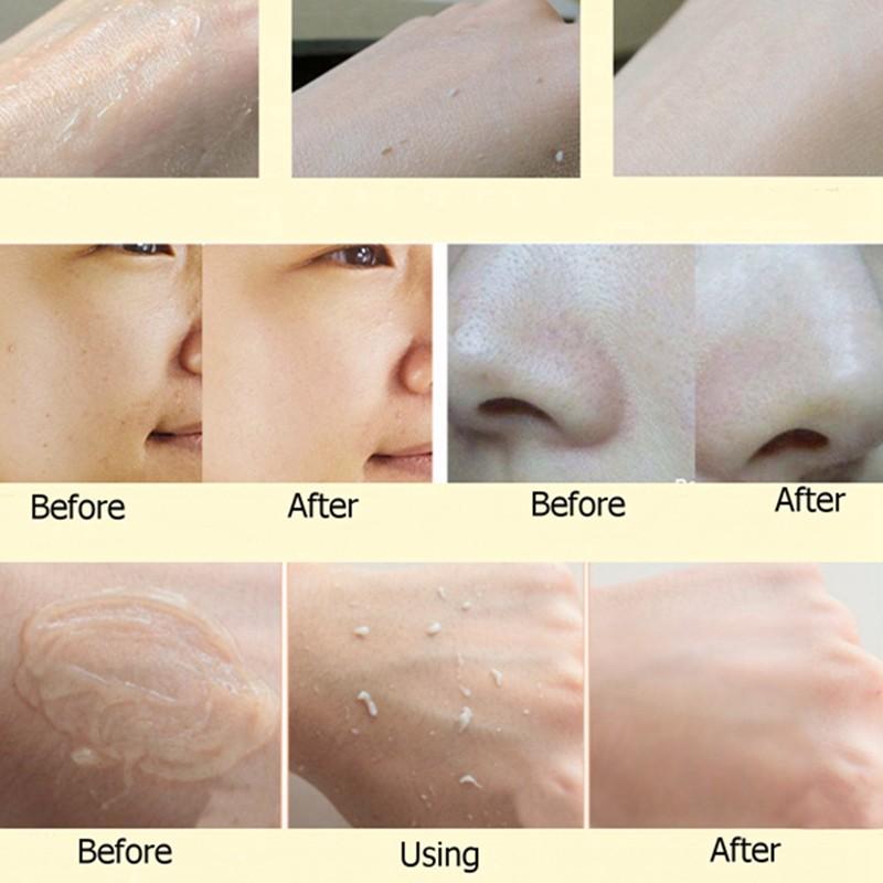 Les masques selon le blanchiment de la peau de la personne
