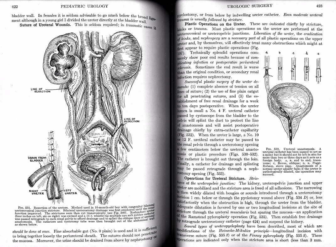 Pediatric Urology in Two Volumes 1937 Campbell Vintage Medical ...